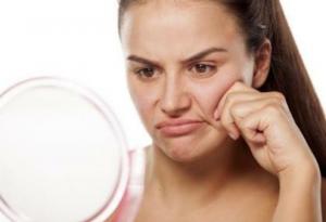 肌荒れ女性のイメージ画像