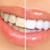 白い歯で笑顔美人に!歯の黄ばみの原因って一体何?