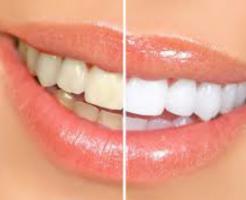 白い歯と黄ばんだ歯
