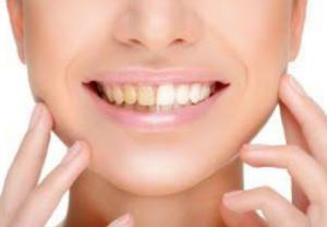 白い歯と黄ばんだ歯の比較イラスト